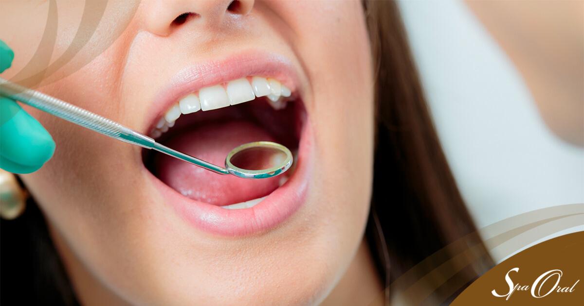 Clareamento Dental pode ser a solução para os dentes brancos