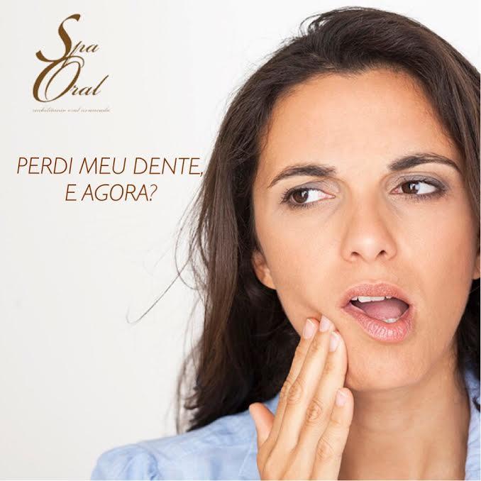 Perdi meu dente e agora? | Spa Oral